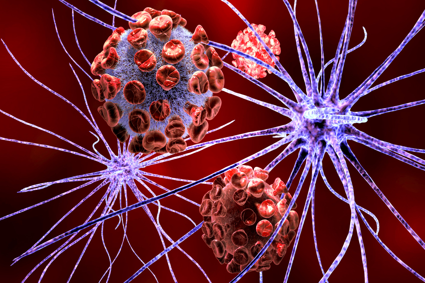 Nerve cell attacked by virus, neurological disorder and genetic disease like parkinson disease, Huntington's disease, muscular dystrophy, Alzheimer's disease, multiple sclerosis, brain tumors.